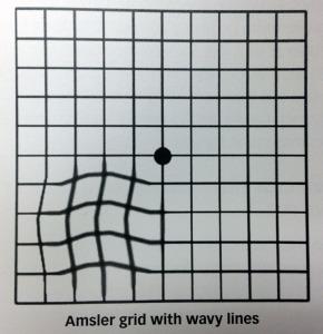 Amsler_grid